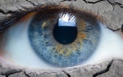 Dry Eye Syndrome: Introduction